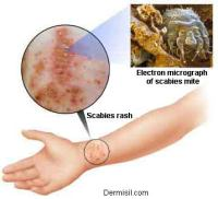 scabies picture