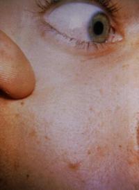 rocky mountain fever skin spots
