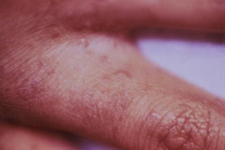 scabies causes pictures treatment and prevention