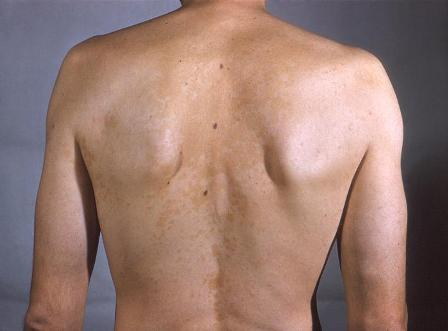 how to get rid of fungus in your body