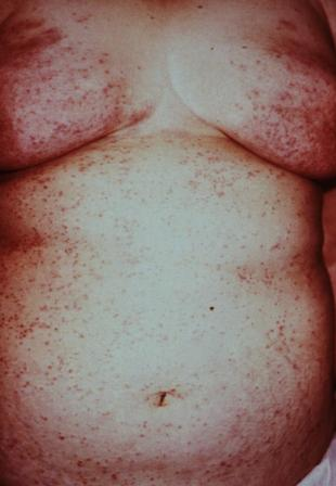 pictures of scabies rash