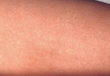 Fever Rash on Forearm. Rash has red bumps that appear on the abdomen