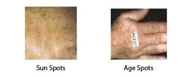 brown skin spots