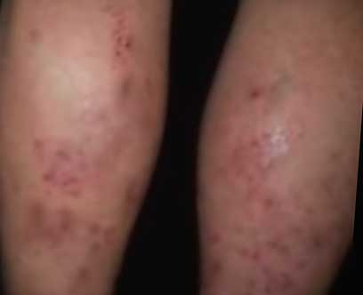 2019 Guide to Hot Tub Rash: Treatment Tips, Pictures & Video