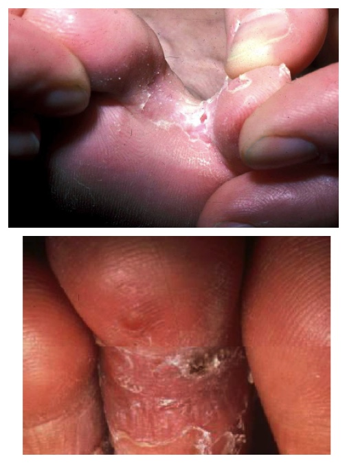 athlete's foot pictures