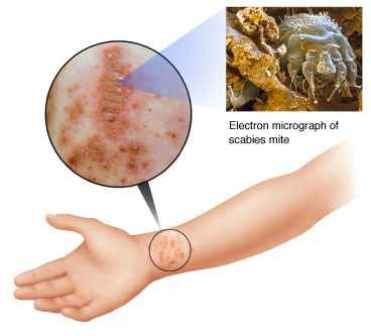causes of body itch