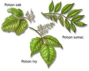 poison ivy body itch