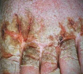 crusted scabies picture