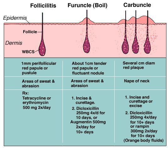 Folliculitis, boil and carbuncle diagram