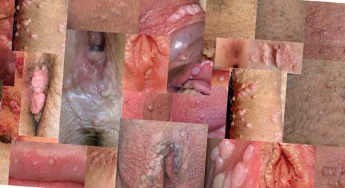 Condyloma in the anal opening