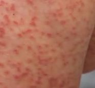 Toddler Skin Rash Pictures and Free Brochures