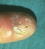 lichen planus on nail