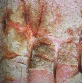 pictures of norwegian scabies