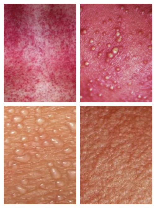 how to stop heat rash itching