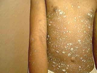 psoriasis symptoms on abdomen