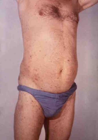 psoriasis on stomach and legs