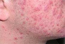 red spots on skin