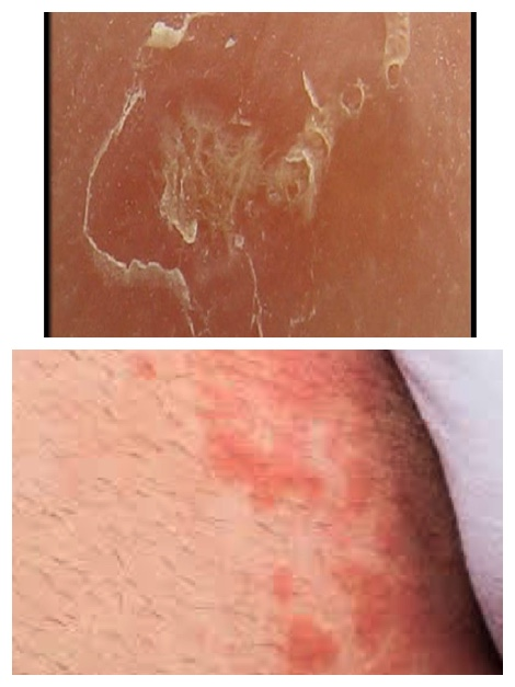 scabies or jock itch