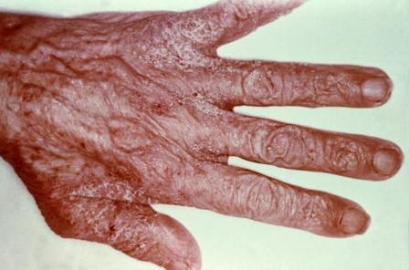 scabies picture on hand