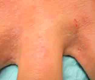 scabies treatment