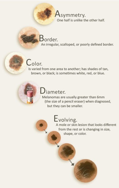 skin mole check chart ABCDE