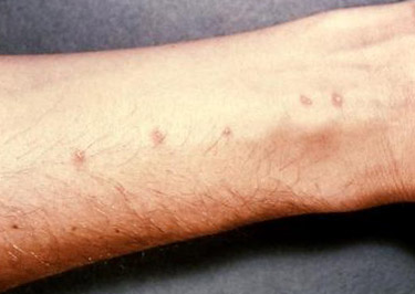 swimmers itch on arm