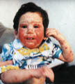 Toddler Eczema Rash - example 1