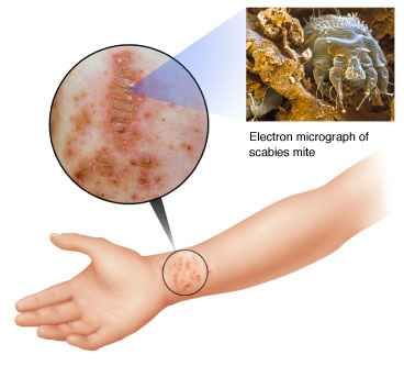 scabies on wrist