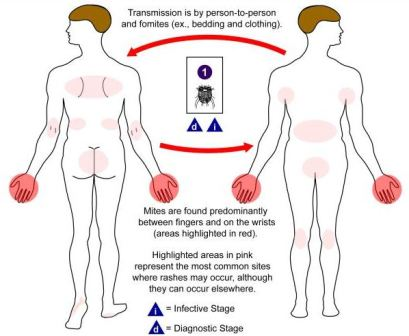 scabies locations on body diagram
