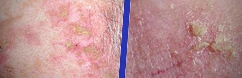 actinic keratosis skin spots