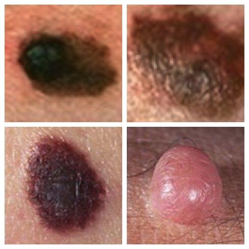 malignant melanoma pictures