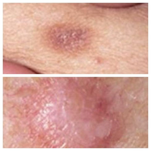 dermatofibroma brown skin spots