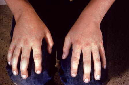 Fifth Disease Rash - Example 1 - 374px x 271px