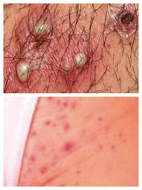 Folliculitis Causes and 21 Treatment Tips: Brochures & Video