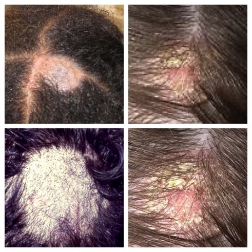 fungus on scalp