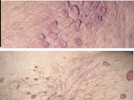 groin skin tags pictures