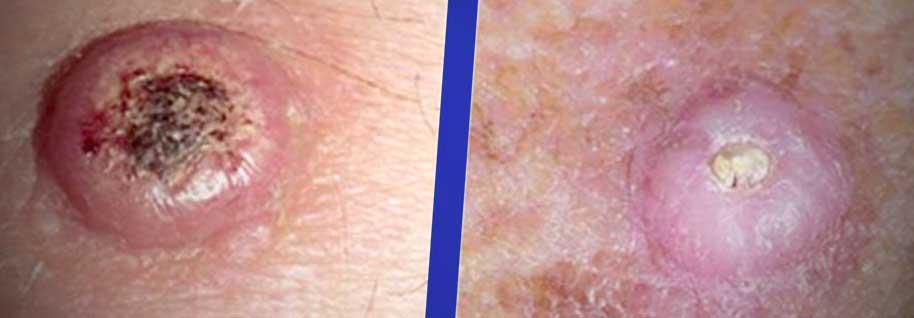 brown spot in mole