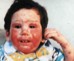 eczema child face