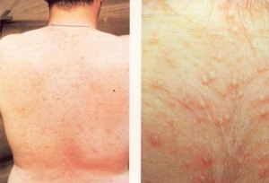 prickly heat rash pictures