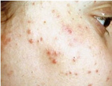 red face spots