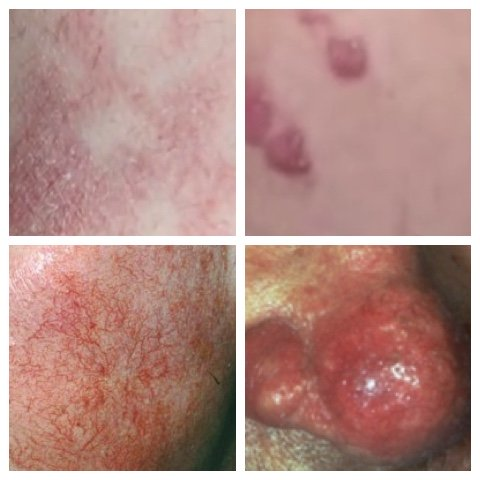 red spots on skin pictures