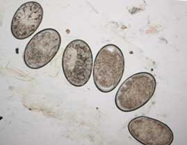 scabies eggs pictures