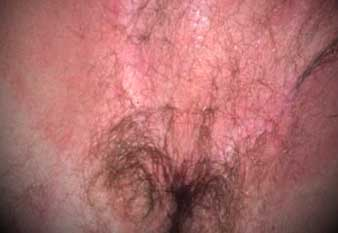 scrotal dermatitis