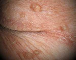 skin tags on eyelid