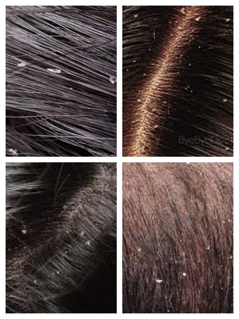what is dandruff